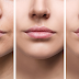 How Useful Is Lip Augmentation Surgery?
