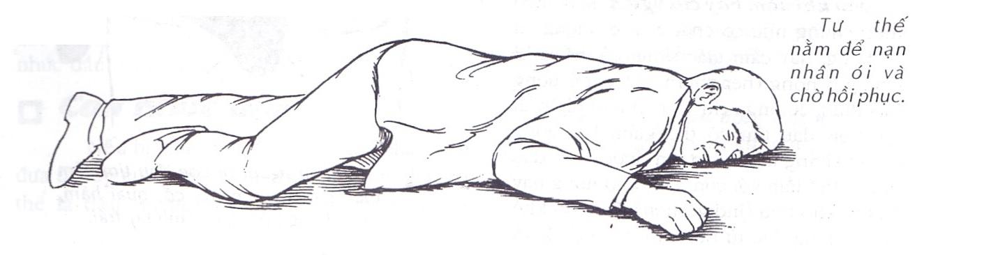Để nạn nhân nằm sấp ói ra khi sau khi sơ cấp cứu