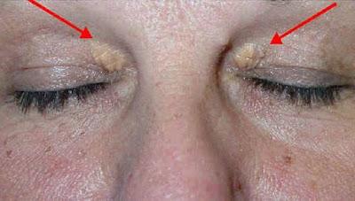 Προσοχή! Τί κίνδυνο αποκαλύπτουν αυτά τα σημάδια στα μάτια (φωτό)