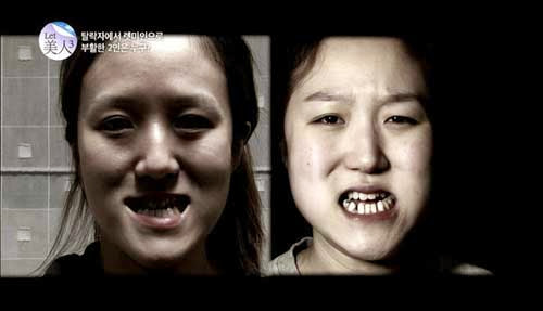 Korean Twin Sisters' Amazing Transformation - Trend Scooper