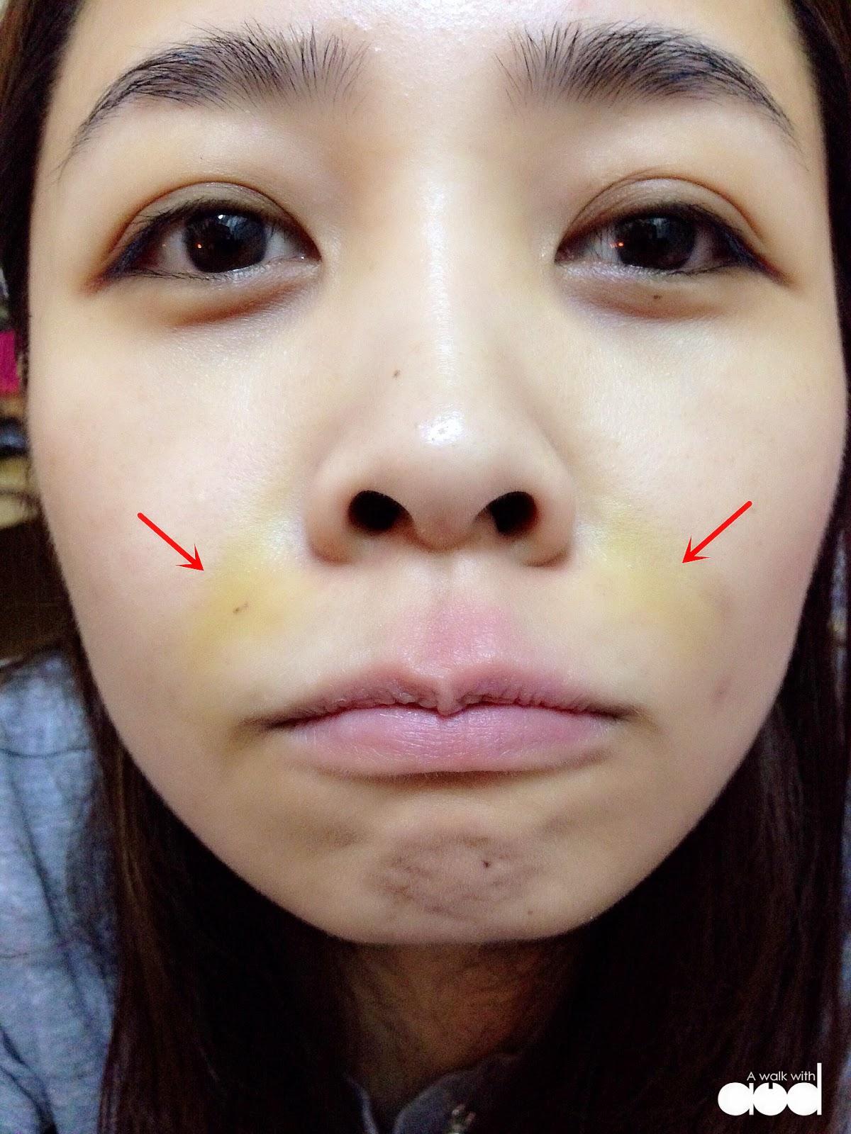 non-surgical-thread-face-lift