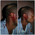 Birthday Party Turns Bloody as Man's Ear Gets Chopped off [photos]