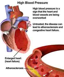 High blood pressure or hypertension.