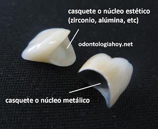 corona dental de porcelana de zirconio alumina