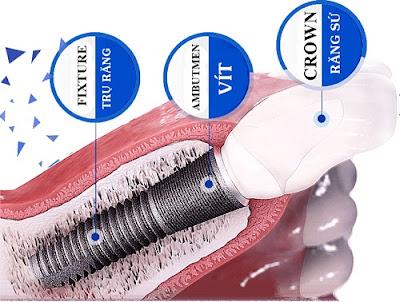 trồng răng implant giá rẻ nhất là bao nhiêu -3