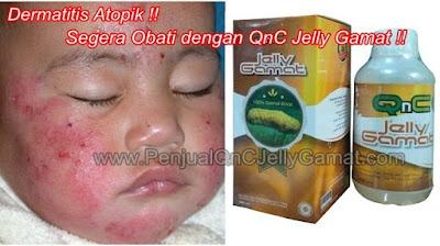 Obat Penghilang Dermatitis Atopik Tradisional, 100% MUJARAB Menyembuhkan Dermatitis Atopik