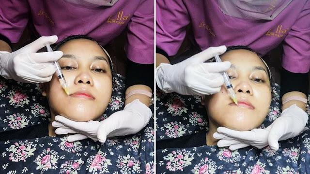 treatment-luminous-bright-ella-skincare