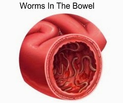 Hookworms In The Bowel