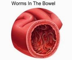 Hookworms In The Bowel