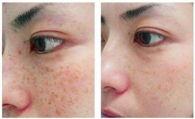 Get Age Spots Free Skin