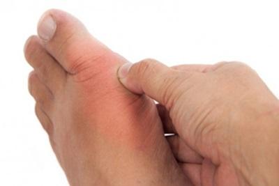 Penderita Asam Urat, Bolehkah Makan Sambal?