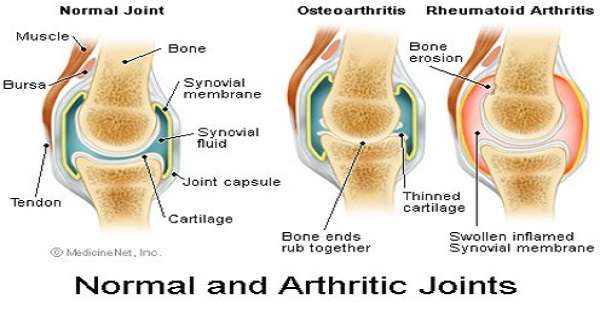 Natural Treatment For Osteoarthritis Of The Spine