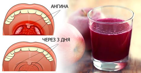 Лечим ангину в домашних условиях без антибиотиков! Натуральное средство уберет боль в горле.