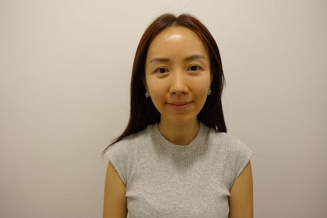 Facial rejuvenation delaware will
