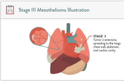 Stage 3 is the Most Commonly Diagnosed Mesothelioma, What Should We Do?