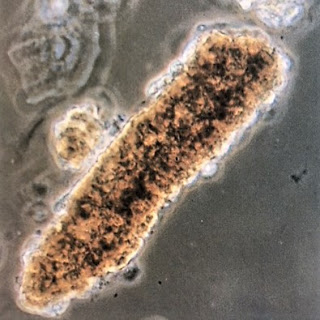 idrar miyoglobin silendir