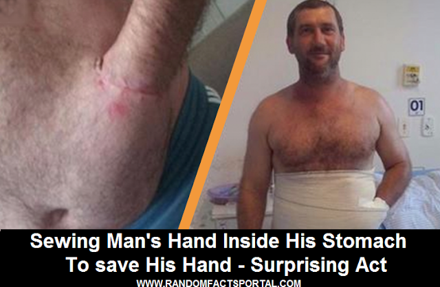 Sewing Man's Hand Inside His Stomach To save His Hand - Surprising Act