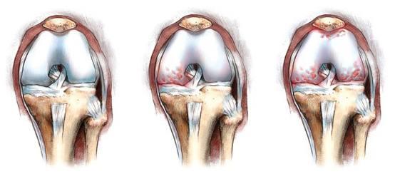 Osteoartritas pėdos priežasčių ir mechanizmo kūrimo, simptomus, diagnostikos metodus ir gydymo