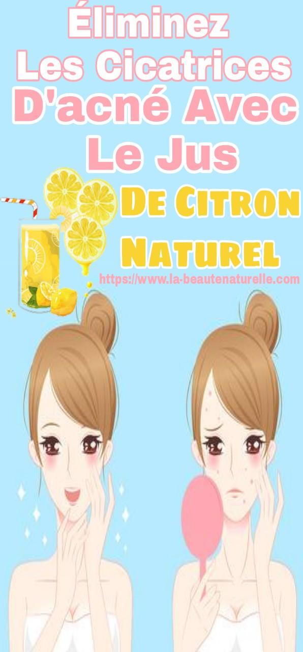 Éliminez les cicatrices d'acné avec le jus de citron naturel