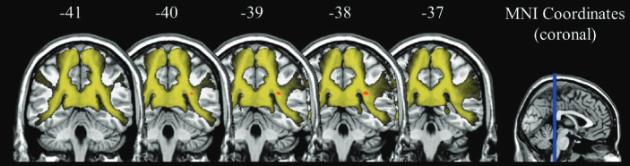 図:脳梁の健全性