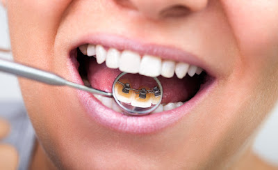 http://whitefielddentist.com/lingual-braces-in-whitefield-bangalore