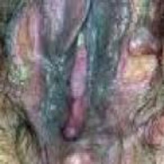 An image of a patient with severe genital infection blue waffle disease pictures