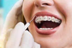 Tidak Perlu Behel, Begini Cara Alami Merapikan Gigi