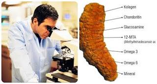 Cara Mengobati Penyakit Kolesterol Tinggi