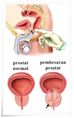 Pengobatan Pembesaran Kelenjar Prostat