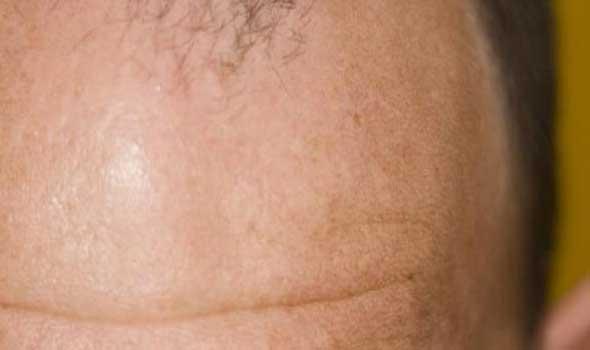 علاج تساقط الشعر وضعفه بوصفات من الطب البديل