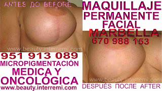 cicatrices pechos Cáncer de mamaria Tratamiento cicatrices