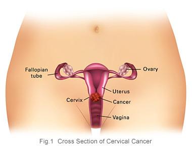 Sekilas Tentang Penyakit Kanker Serviks