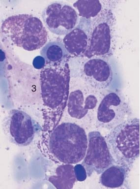 Bone marrow in systemic mastocytosis
