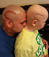 padre genial se tatua cicatriz de operacion en la cabeza