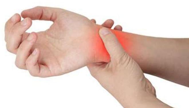 Novo medicamento para artrite reumatoide é incorporado ao SUS