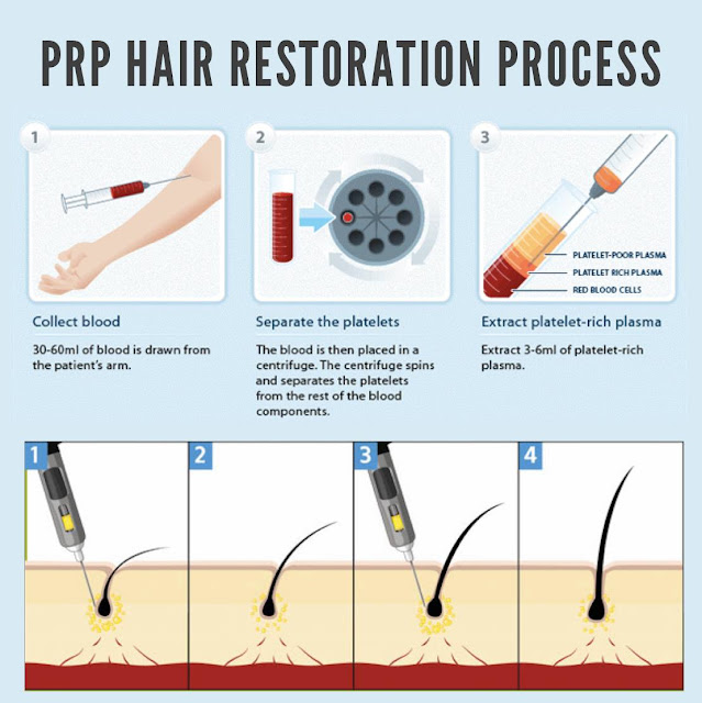 PRP Hair Restoration Process | Best Hair Transplants