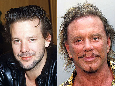 Chatter Busy: Mickey Rourke Plastic Surgery