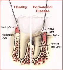 Cara Alami Menyembuhkan Periodontitis