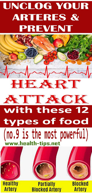 12 types of food which reduce the risk of heart stroke#NATURALREMEDIES