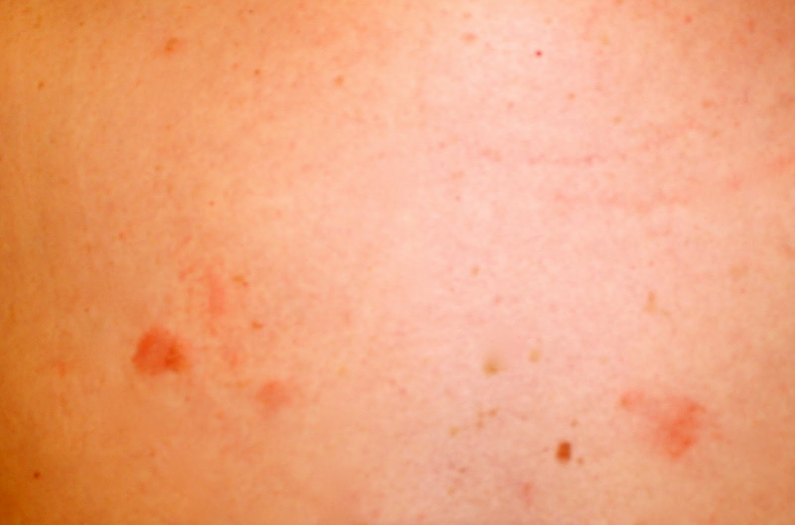 skin lesions from aids - digitalspace info