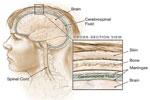 La meningitis o inflamación de las meninges