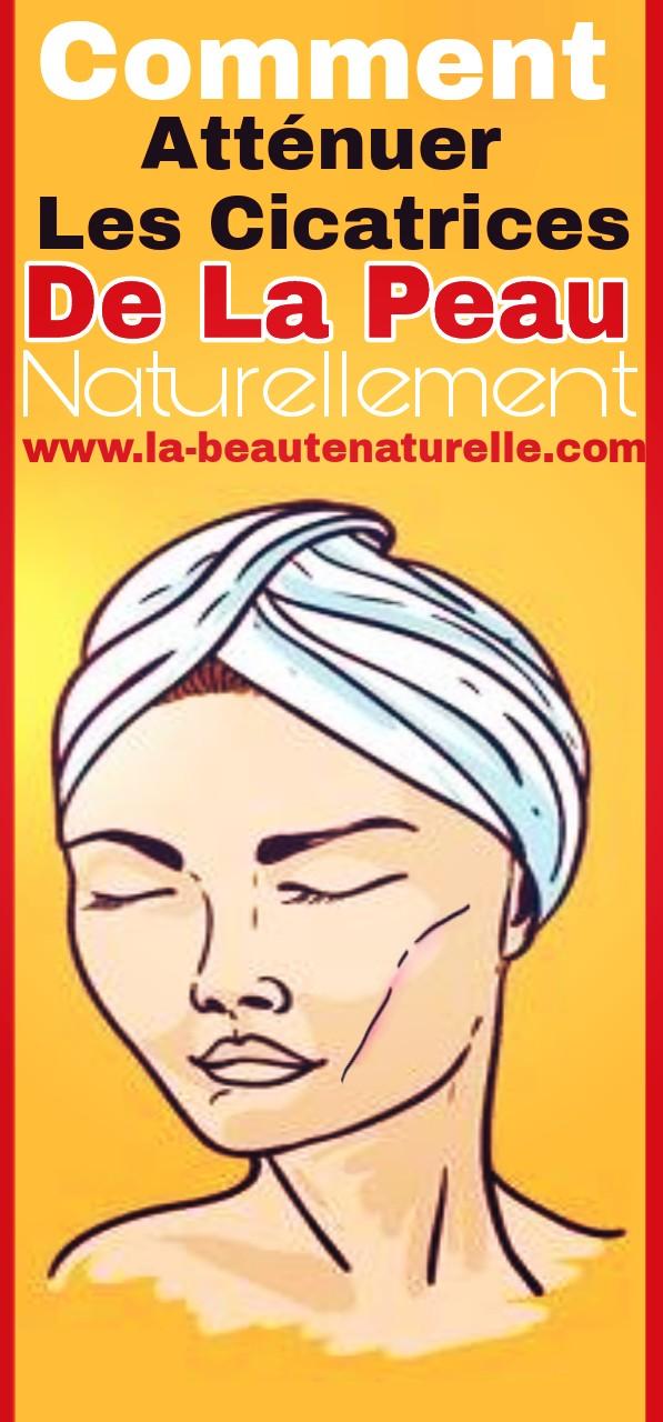 Comment atténuer les cicatrices de la peau naturellement