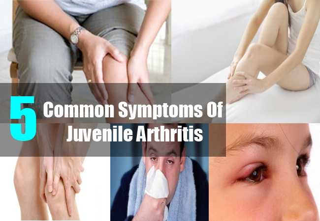 Juvenile Rheumatoid Arthritis Symptoms - Rheumatoid Arthritis ...