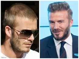 saç ekimi öncesi ve sonrası foto 32