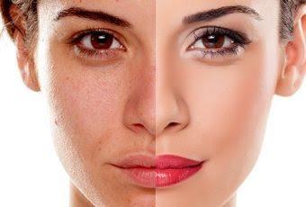 Tình trạng da trước và sau khi dùng sữa dưỡng trắng da mặt Transino