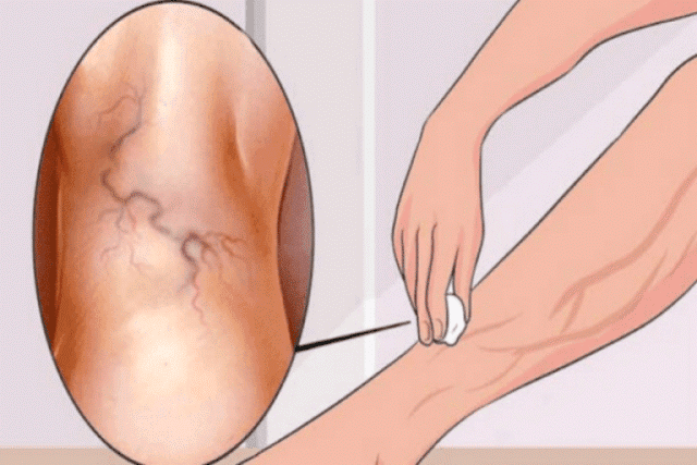 Remove Varicose Veins With This Single Ingredient