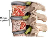 Gambaran multiple myeloma pada vertebra