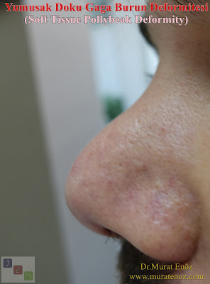 Yumuşak Doku Gaga Burun Deformitesi (Soft Tissue Pollybeak Deformity)