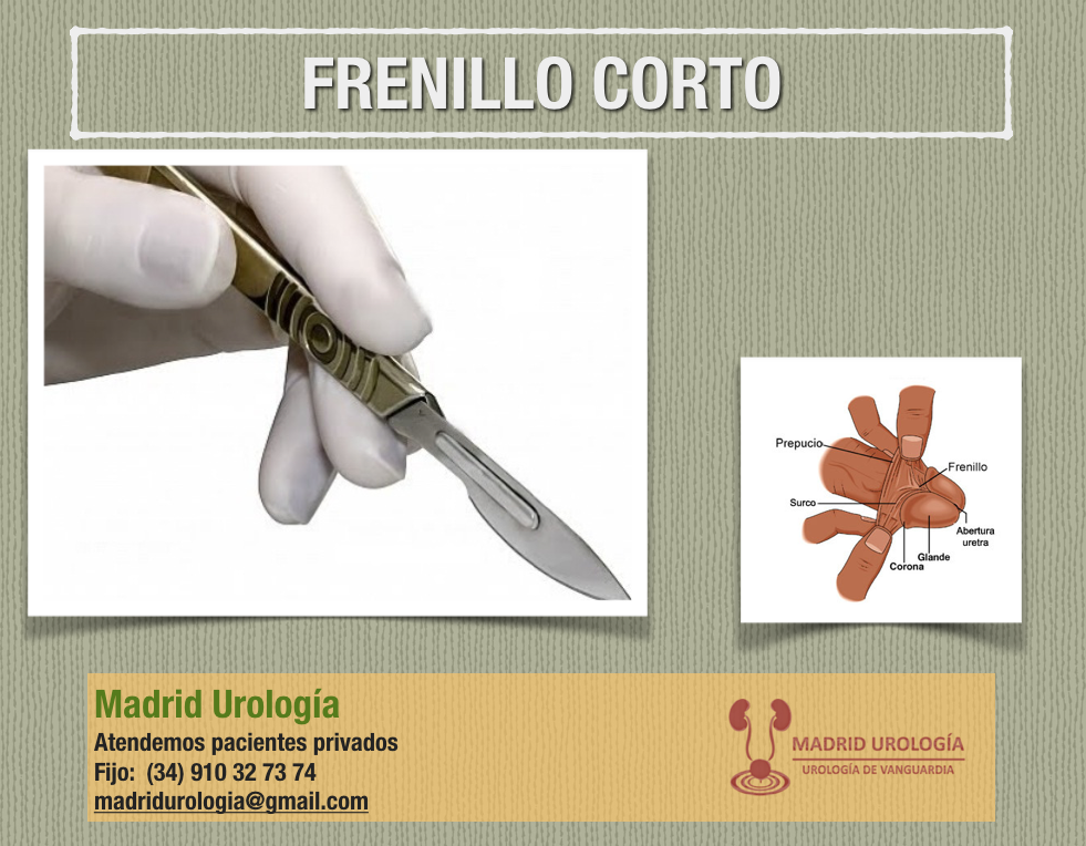 Magnífico Anatomía Masculina Frenillo Ornamento - Imágenes de ...