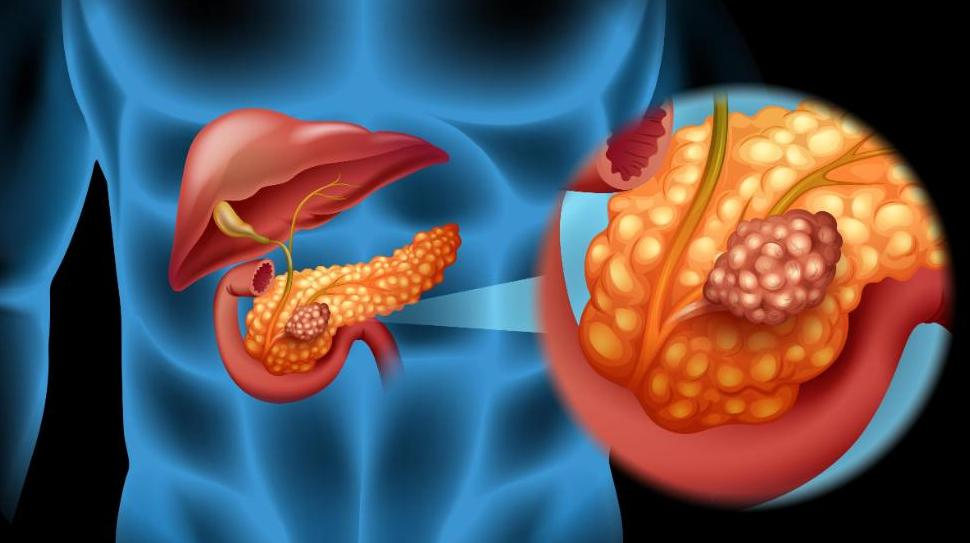 Inoperable Pancreatic Cancer Life Expectancy
